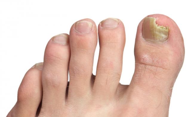 Si es posible aplicar nitrofungin al hongo de las uñas