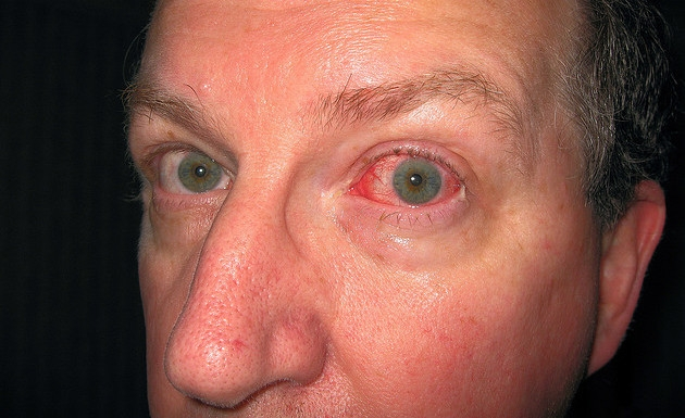 Cuando-debemos-preocuparnos-por-el-ojo-rojo-3.jpg