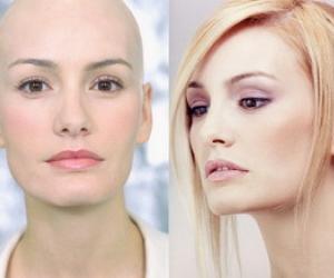 Manejar la caída del cabello durante la quimioterapia 4.jpg