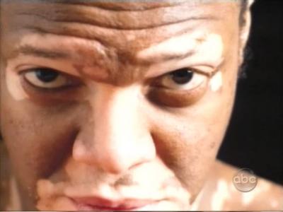 tratamiento vitiligo.png